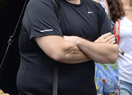 Screen Shot 2019 01 08 at 09.34.27 29 Celebrities You Didn't Know Had Deformities