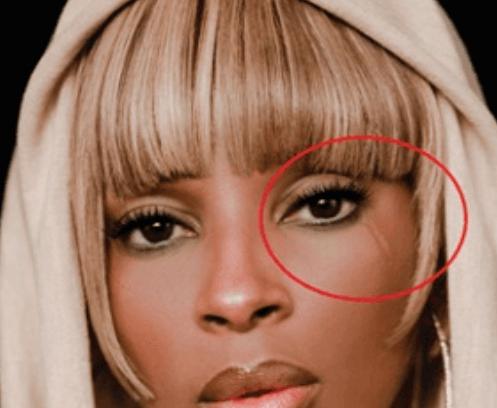 Mary J Blige Eye Scar