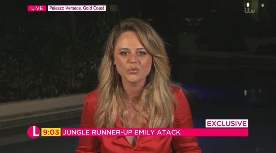 2 14 Emily Atack Looks Stunning After Jungle Makeover