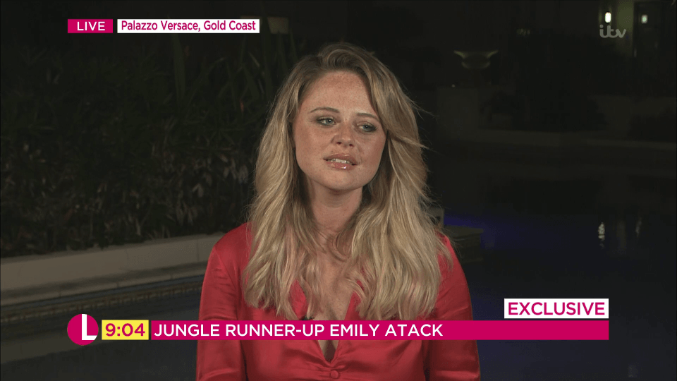 4 2 Emily Atack Looks Stunning After Jungle Makeover