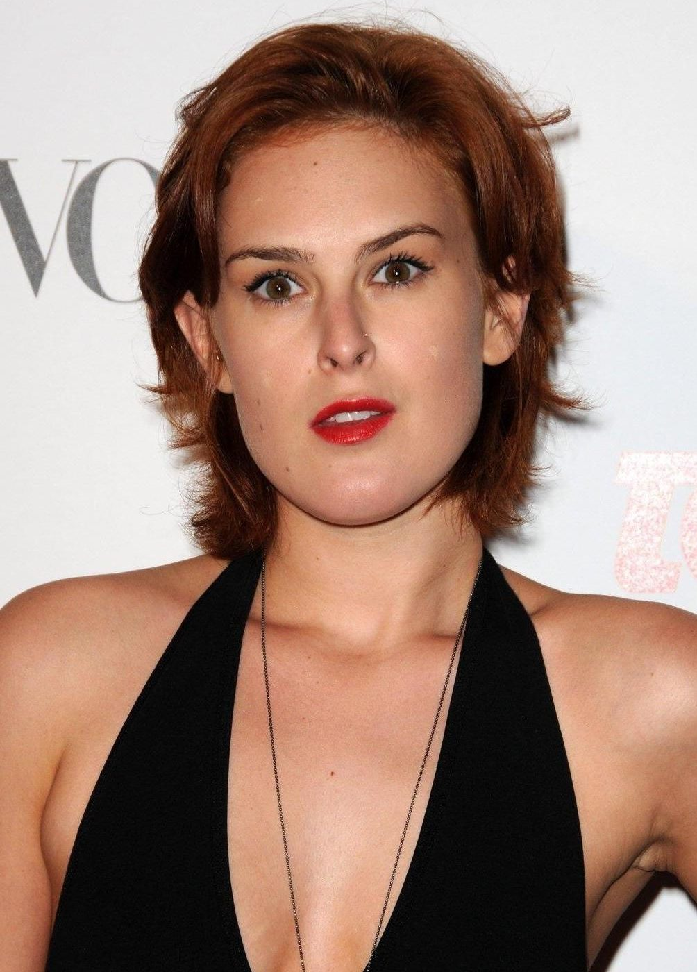 Rumer Willis 2 e1544783768812 Celebs Before And After Surgery