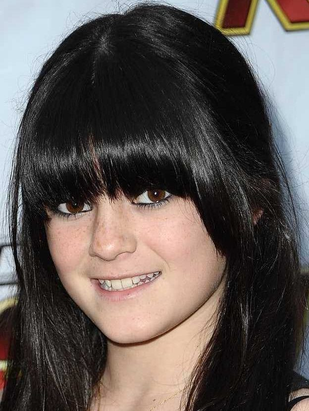 a Kylie Jenner Plastic Surgery May 2009 e1544782675793 Celebs Before And After Surgery