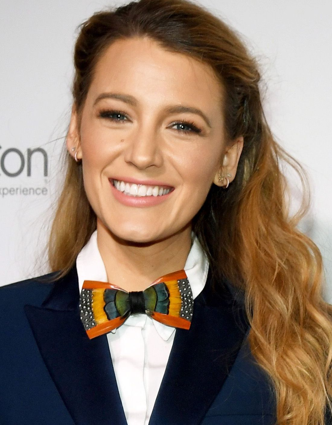 hbz blake lively index 951586168 1525269665 Celebs Before And After Surgery