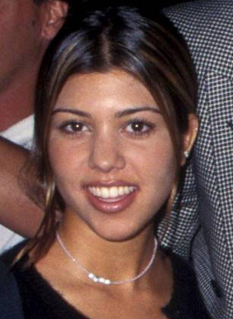 kourtney kardashian 1995 1 1 e1544785680560 Celebs Before And After Surgery