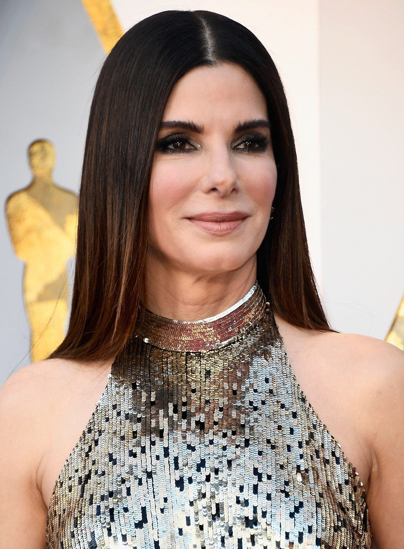 sandra bullock e1544785290125 1 Celebs Before And After Surgery