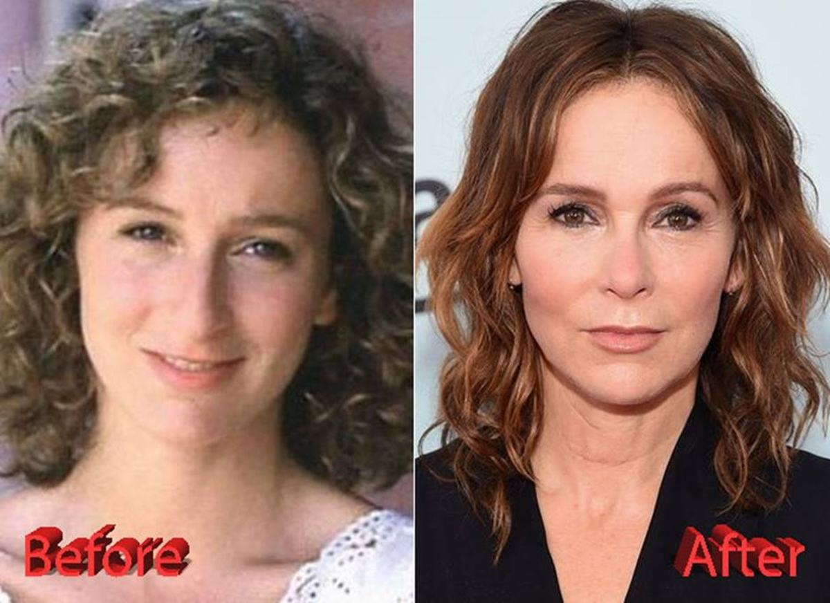 Jennifer Grey's nose, before and after