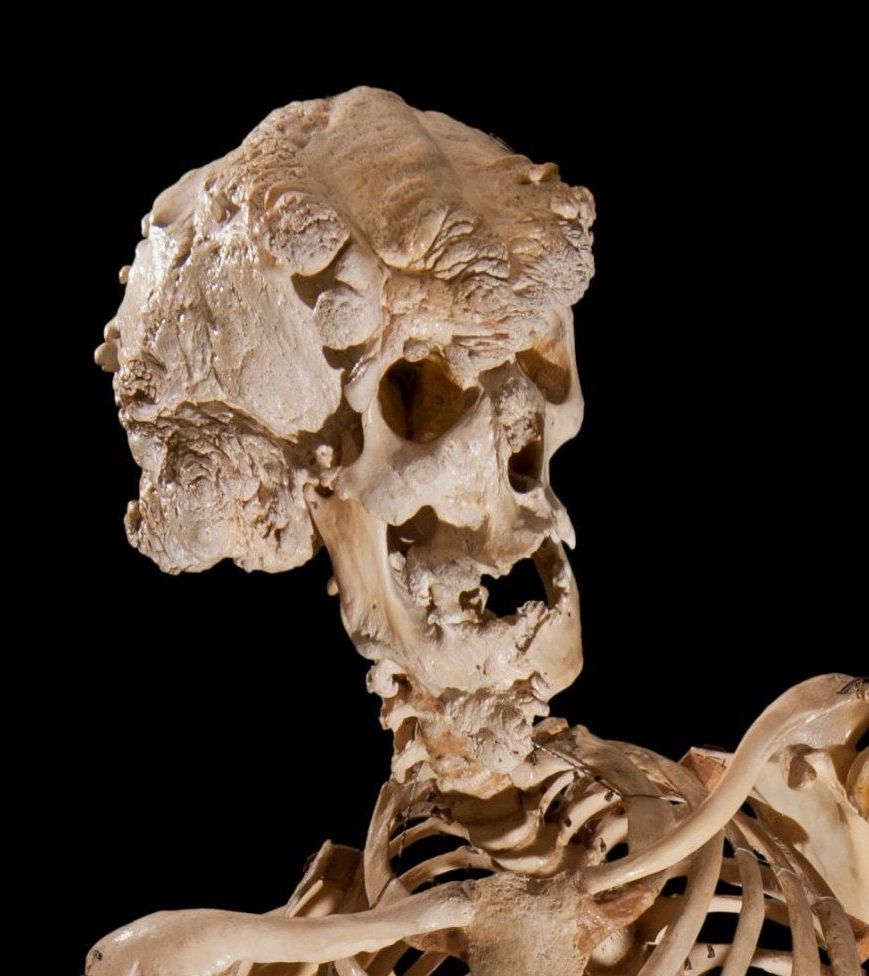 89913867 merrick skull 20 Things You Didn't Know About Michael Jackson