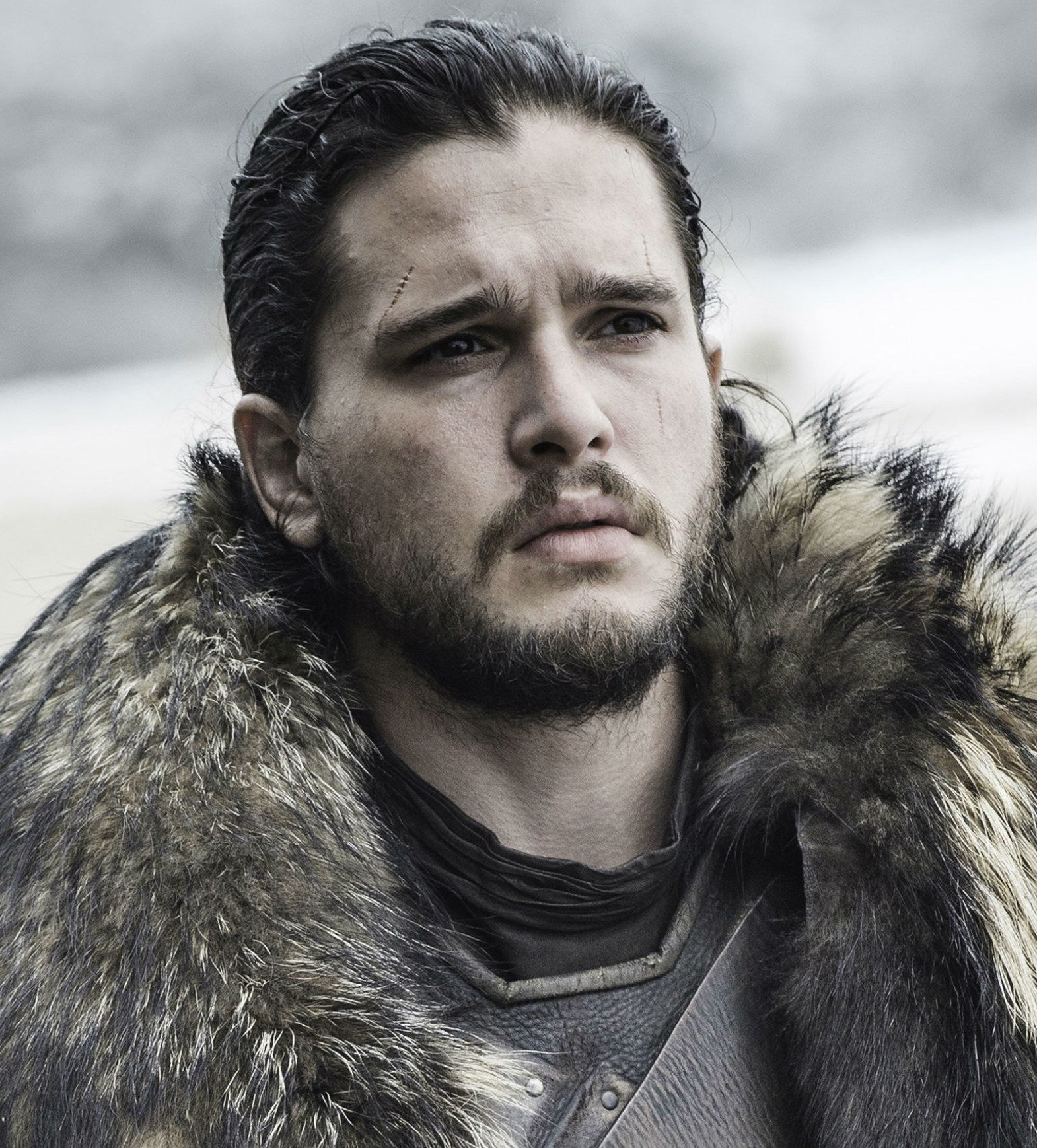 kit harington black eye audition 20 Things You Didn't Know About Kit Harington
