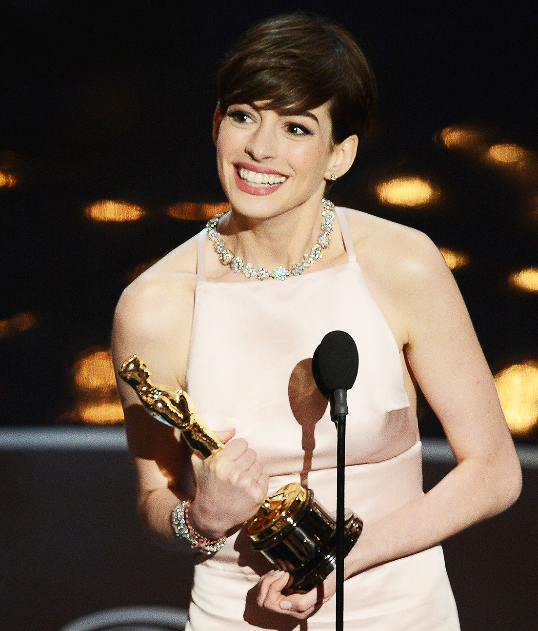 anne hathaway1 10 Actors Who Seriously Injured Themselves To Win An Oscar