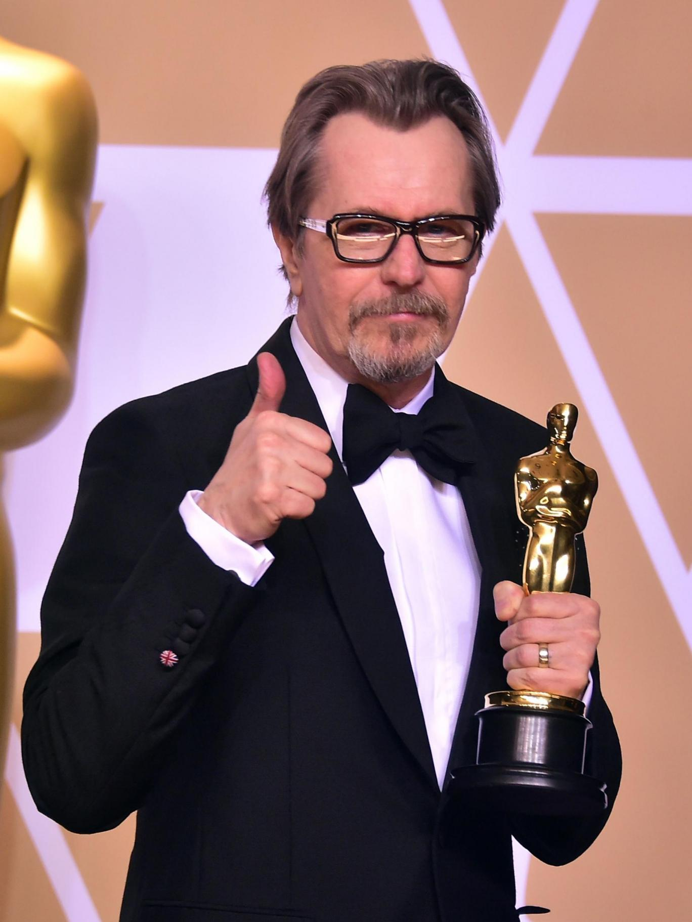 oscars2018show0503n 10 Actors Who Seriously Injured Themselves To Win An Oscar