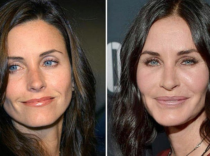 2 49 8 Before And After Pictures Of Actors Transformed By Plastic Surgery