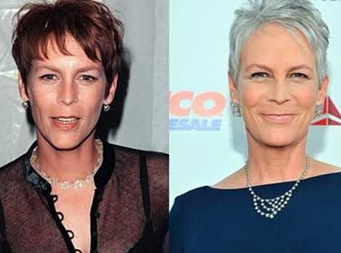 3 41 8 Before And After Pictures Of Actors Transformed By Plastic Surgery