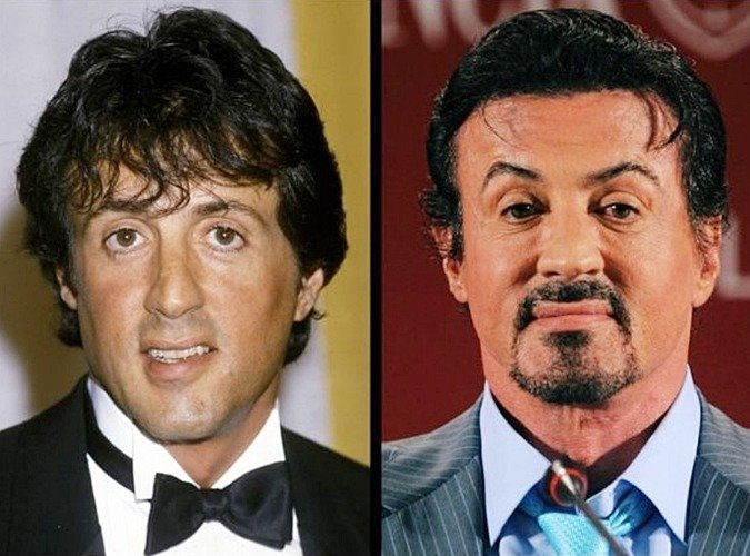 4 46 8 Before And After Pictures Of Actors Transformed By Plastic Surgery