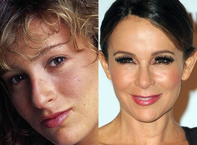 8 38 8 Before And After Pictures Of Actors Transformed By Plastic Surgery