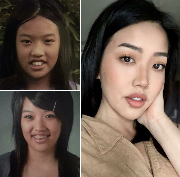 3 60d9e4e28b626 700 Ugly Duckling Transformations That Will Leave You Stunned