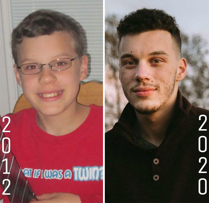 before after ugly duckling transformation 4 60dadef6c730b 700 Ugly Duckling Transformations That Will Leave You Stunned