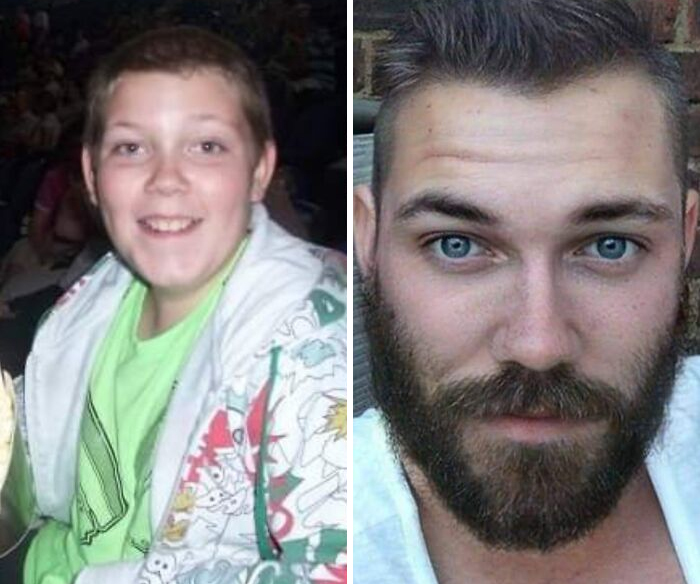 people uglyduckling pics 21 607560a4f0d45 700 Ugly Duckling Transformations That Will Leave You Stunned